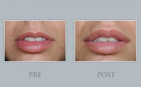Tratamiento de remodelación labial en Barcelona