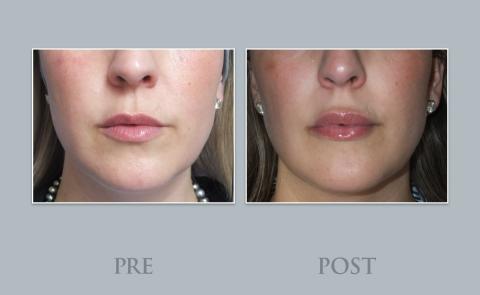 Tratamiento relleno mucosa labial
