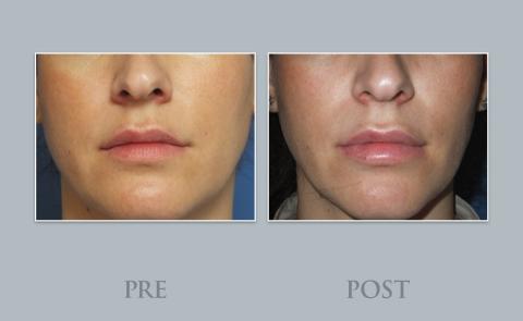 Tratamiento reborde y refresco labial