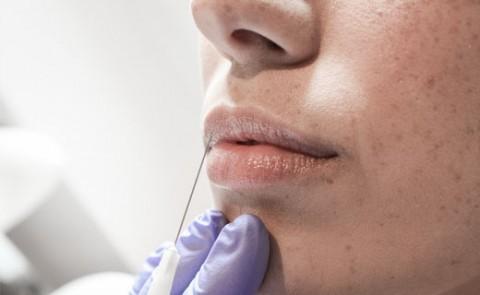 Tratamiento con aguja para el tratamiento de remodelación labial
