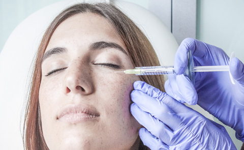 Inyección de colágeno en contornos de ojos de mujer