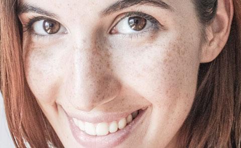 Tratamiento análisis del estado de la piel en Barcelona