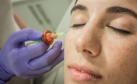 Tratamiento facial CO2 con fines terapéuticos