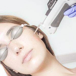 Tratamientos con tecnología láser en el Instituto Dra.Natalia Ribé