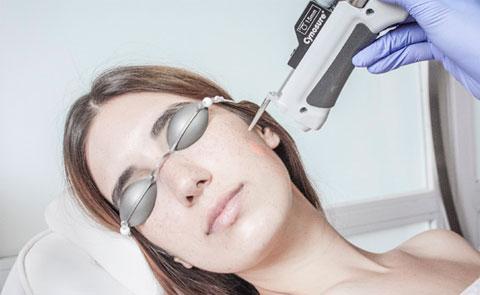 Tratamiento facial con láser para corregir lesiones vasculares Ribé