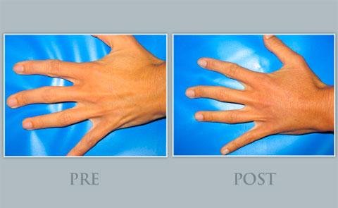 Antes y después del rejuvenecimiento de manos Institut Dra.Natalia Ribé