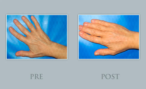 Demostración pre y post rejuvenecimiento de manos