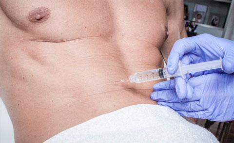 Técnica de mesoterapia para reducir la grasa corporal en Ribé