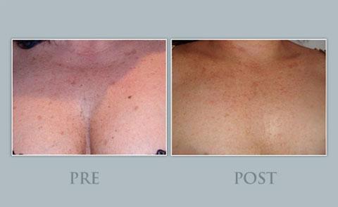 Pre y post tratamiento para la tonificación del escote Dra.Natalia Ribé