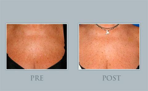 Demostración del antes y el después del tratamiento rejuvenecedor de escote