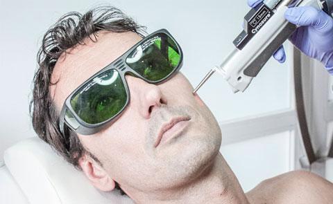 Tratamiento láser para rejuvenecer el rostro Dra.Ribé