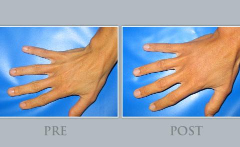 Tratamiento corporal rejuvenecimiento de manos Dra.Ribé