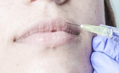 aumento de labios en Barcelona