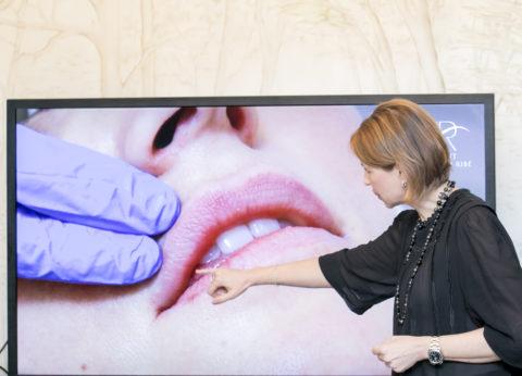 Técnica clodia para rejuvenecer los labios