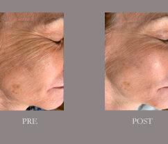 SkinPen Pre Post